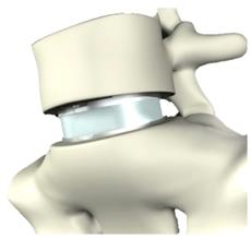 Prothese_implantiert
