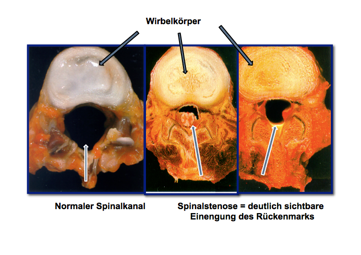 Spinalstenose-2