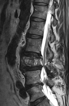Spinalstenose
